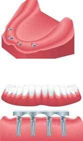 allon4 Anerkannte Zahnklinik Zahnarzt im Ausland Polen Stettin bietet preiswerte kostengünstige Zahnersatz Zahnimplantate Zahnkronen Zahnbrücken Zahnprothesen an