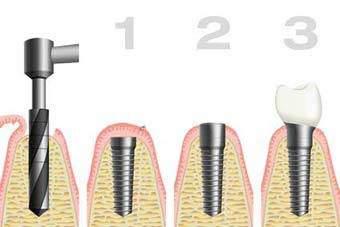 Anerkannte Zahnklinik Zahnarzt im Ausland Polen Stettin bietet preiswerte kostengünstige Zahnersatz Zahnimplantate Zahnkronen Zahnbrücken Zahnprothesen an